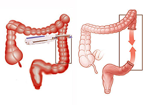 Colon Resection and Appendectomy
